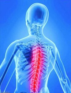 علاج-آلام-الظهر-بالأشعة-التداخلية